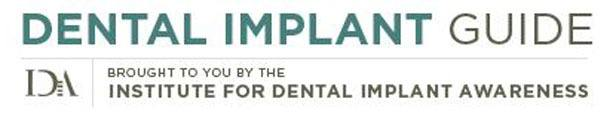Dental Implant Education Resources Blog Image