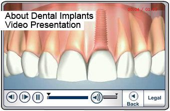Dental Implant Video in Peoria