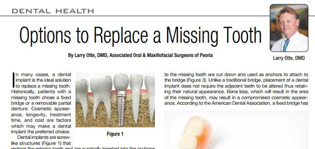 Options To Replace Missing Teeth Blog Image