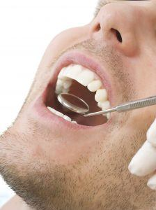 Tooth Extractions Macomb