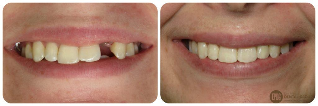 Before and After photo results from Dental Implant