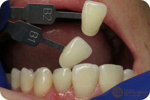 Actual photo from dental implant photography
